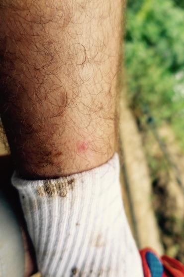 Christiana's mosquito bite